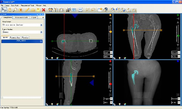 Orthopedic Templating Software