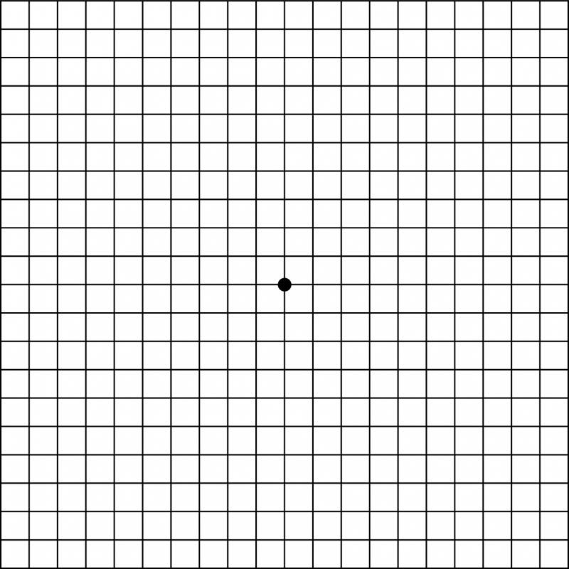 Macular Degeneration Amsler Grid Pdf