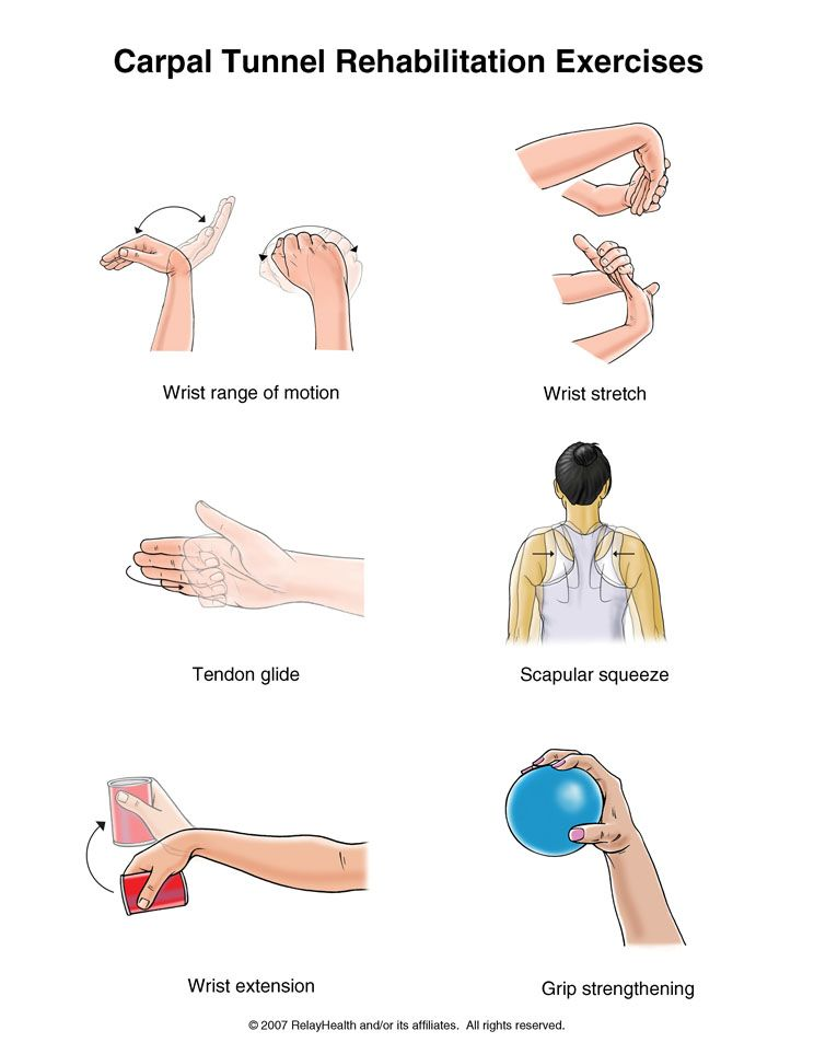 Carpal Tunnel Release Exercises Pdf