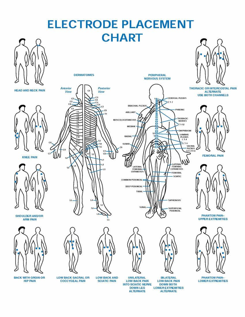 Shoulder Tens Electrode Placement Chart Pdf