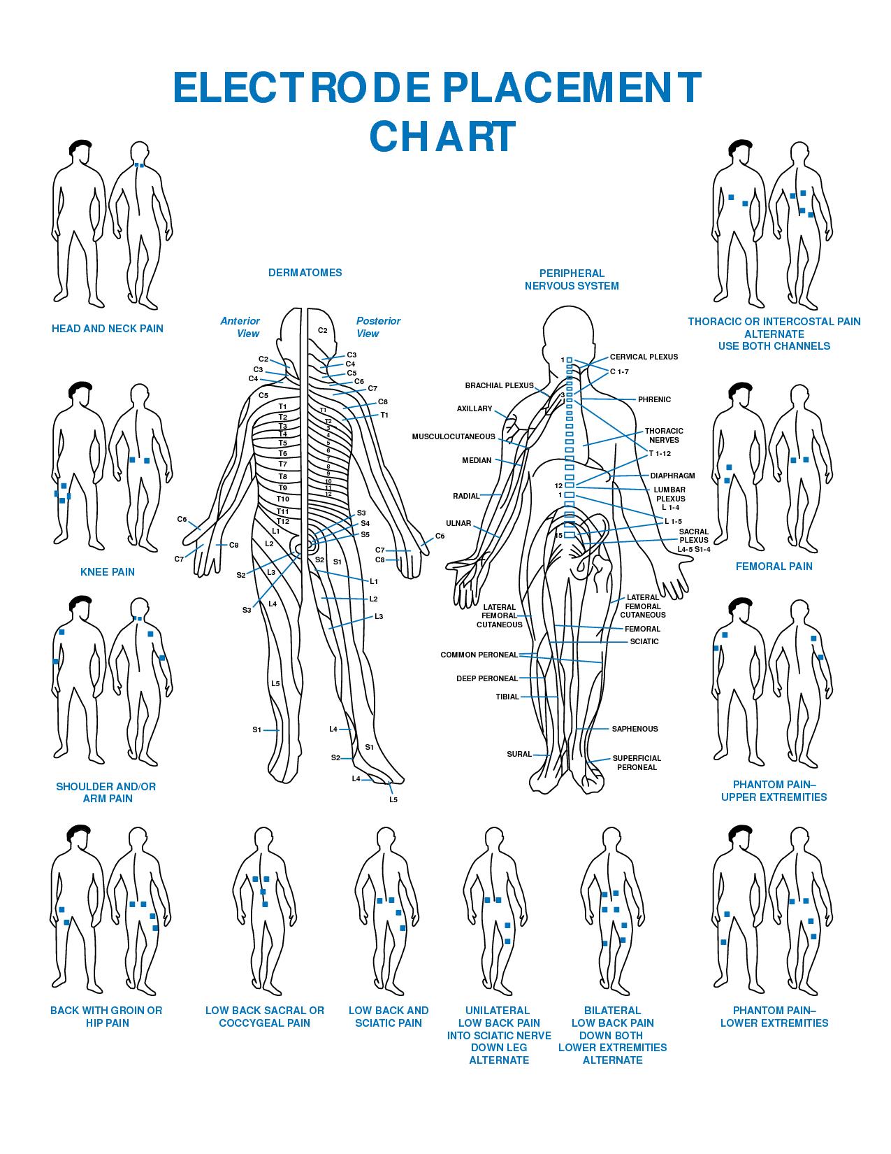 Tens Electrode Placement Chart Pdf