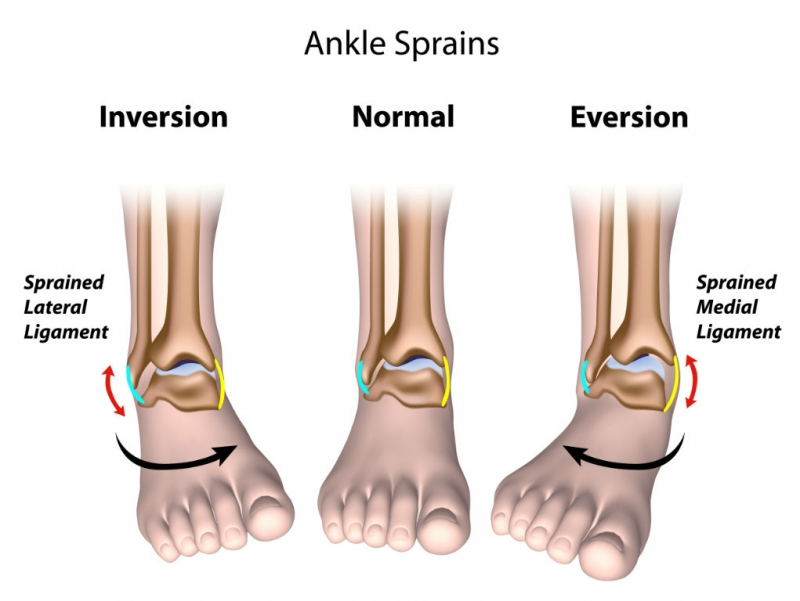 Strengthening Ankle Sprain Exercises Pdf