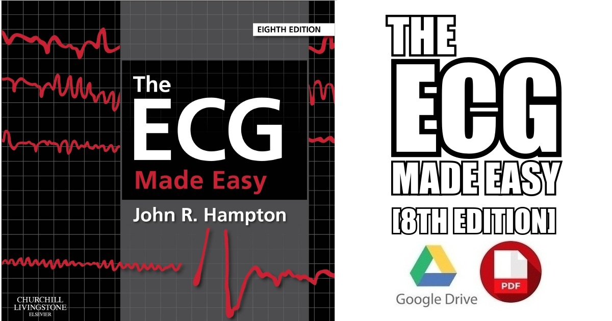 Ecg Made Easy Pdf Download