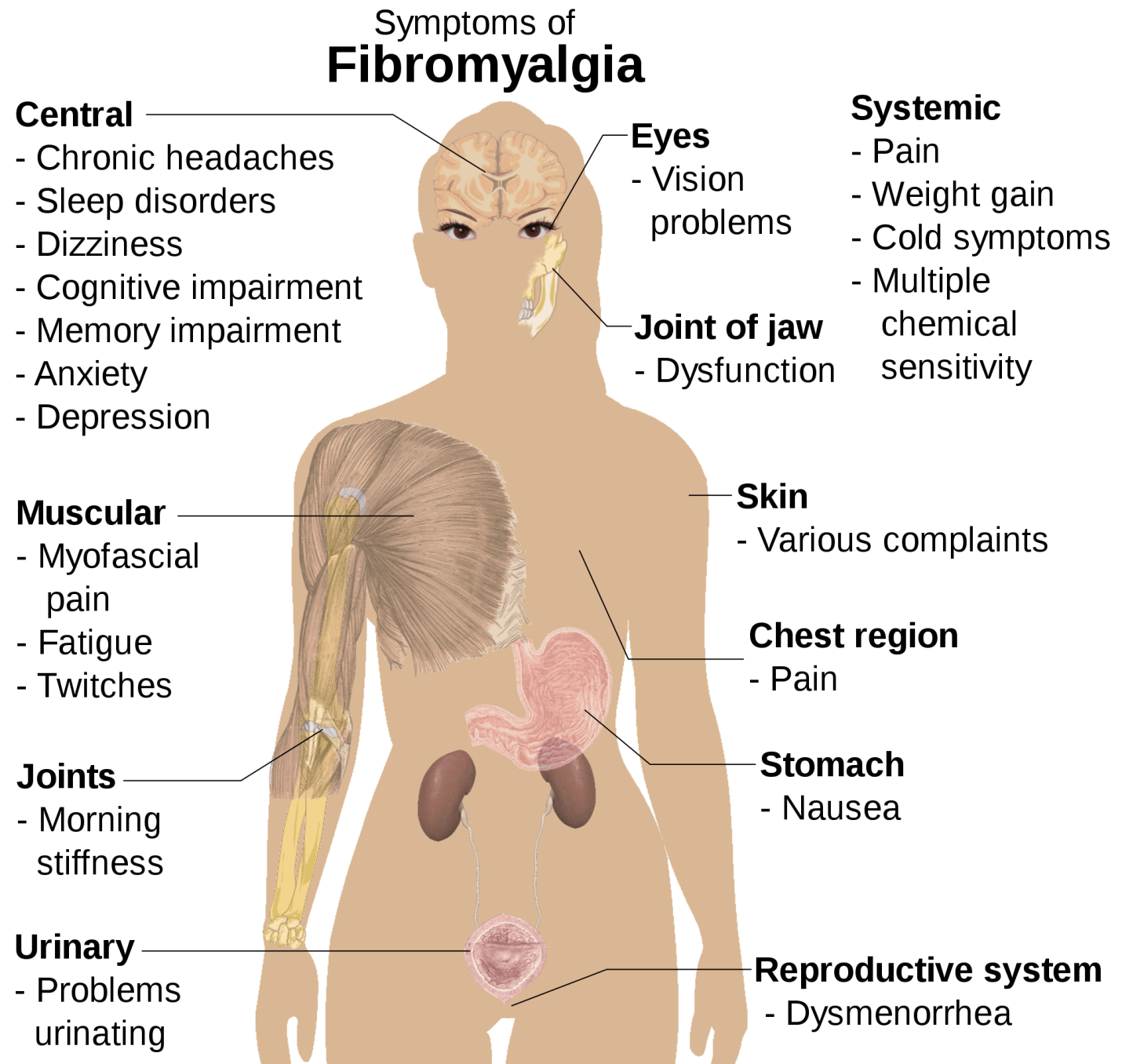Fibromyalgia Tender Points Chart Pdf