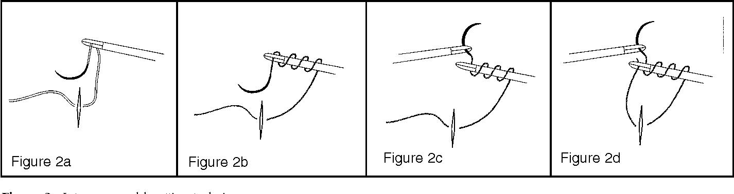 Suturing Techniques Pdf