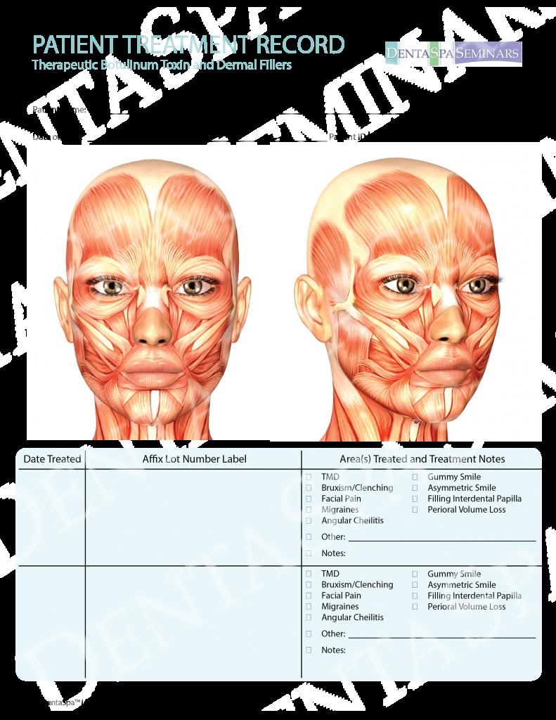Botox Face Diagram Pdf
