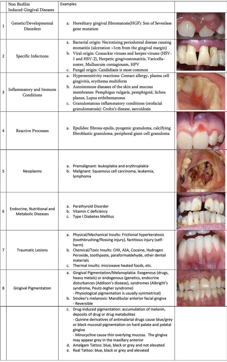 New Classification Of Periodontal Disease 2018 Pdf